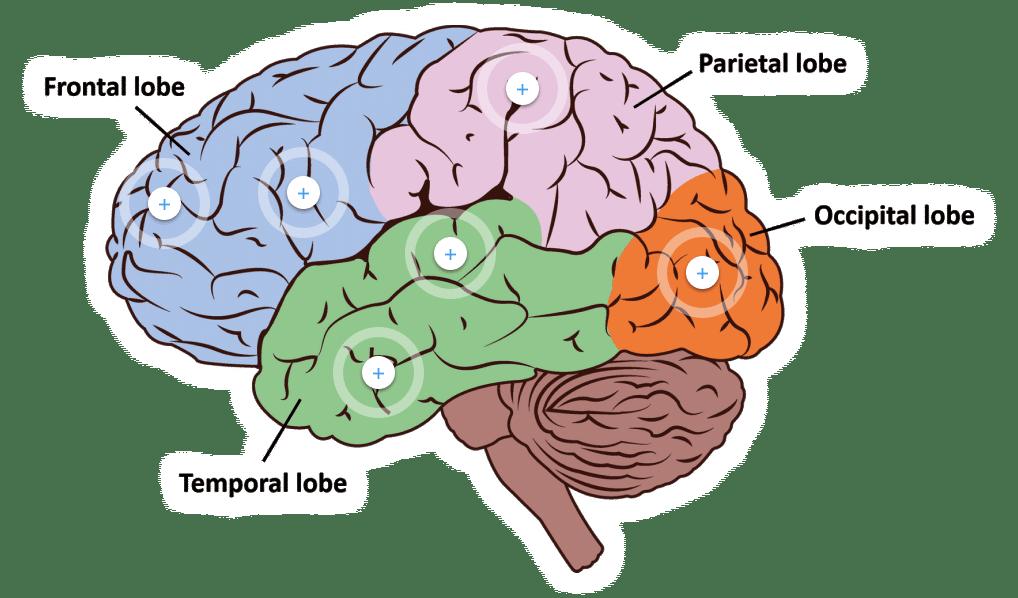 brain_graph